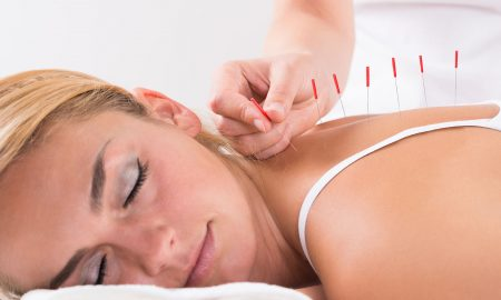 A woman Performing Acupuncture Therapy On Customer's Back