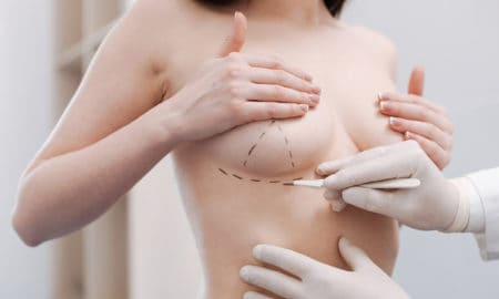 what-things-to-consider-before-undergoing-breast-augmentation-surgery